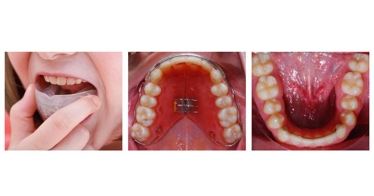 apparecchi ortodontici di contenzione