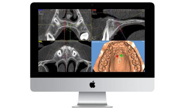 apparecchi ortodontici su misura digitali